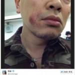 宮迫博之、転倒して顔に大きな傷が!!大丈夫なの?